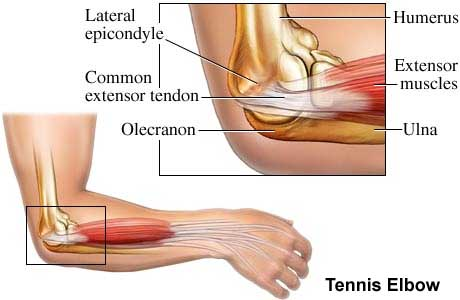 Chronic Elbow Tendinitis and Platelet Rich Plasma