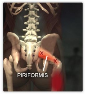 piriformis-skeleton